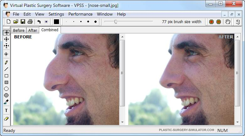 virtual_plastic_surgery_shot
